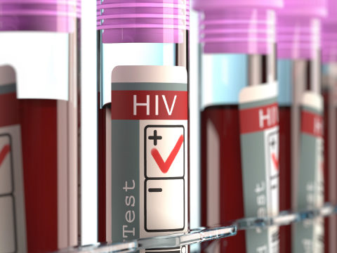 Test tube with HIV positive label