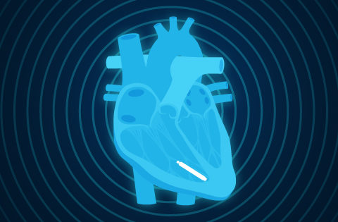 0904-Feature-wireless pacemaker_Blog (3)